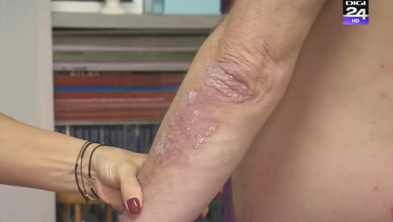boala articulară la adolescenți cu artroza articulației șoldului