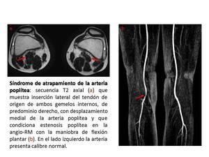 boala popliteală a articulațiilor