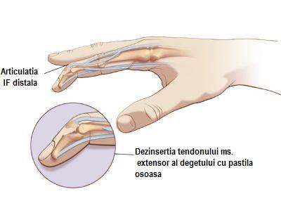 articulația degetului mare și a degetului doare