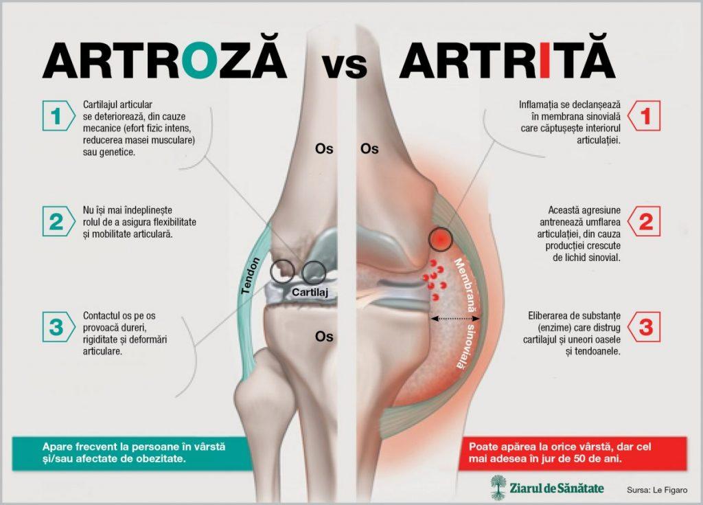 care este diferența dintre artroza și artrita mâinilor oasele și articulațiile doare cum se tratează