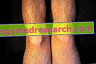 nume de boli osoase și articulare tratament articular terraflex