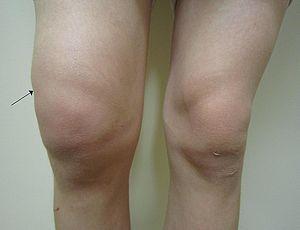 Numele bolii articulației genunchiului genunchi - Gonartroza, boala care imobilizează genunchiul