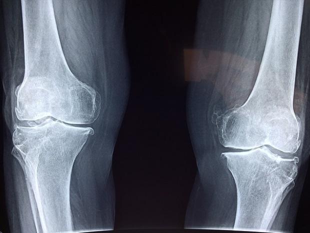 unguent pentru osteoporoza genunchiului compoziția producției de farmacos glucosamină condroitină