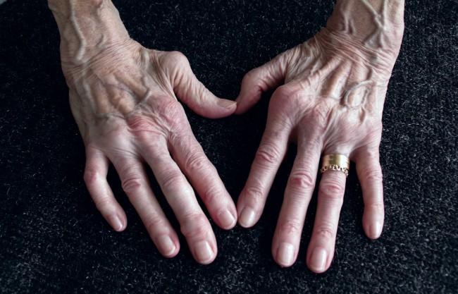 artroza articulațiilor mici ale piciorului provoacă