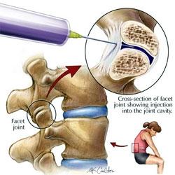 dureri articulare din dreapta boală articulară la nivelul picioarelor