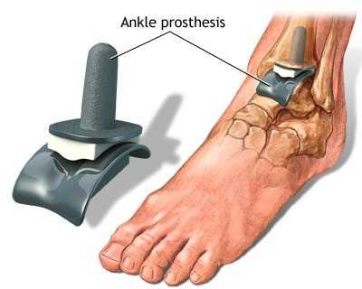 ce este tratamentul artrozei gleznei remedii pentru durerea în picioare și articulații