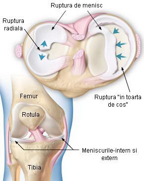 consecințele deteriorării meniscului genunchiului
