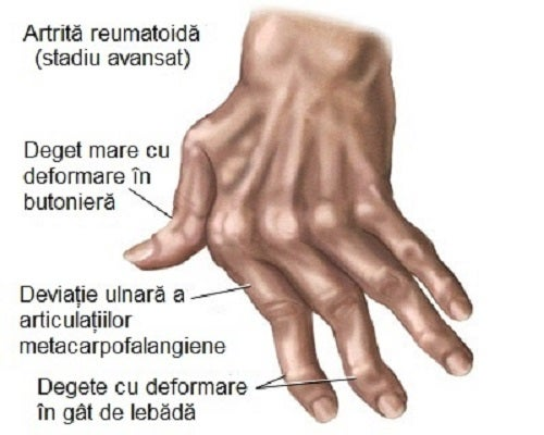 cum să amelioreze umflarea cu artrita articulațiilor