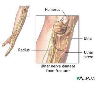 artroza picioarelor decât tratează picior dureros sub genunchi
