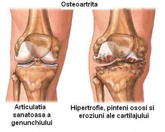 tratamentul rupturii ligamentelor și mușchilor articulației umărului ce să facă articulații dureroase pe coate