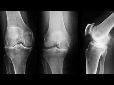 cum să restabiliți artroza articulației genunchiului edem al măduvei articulare