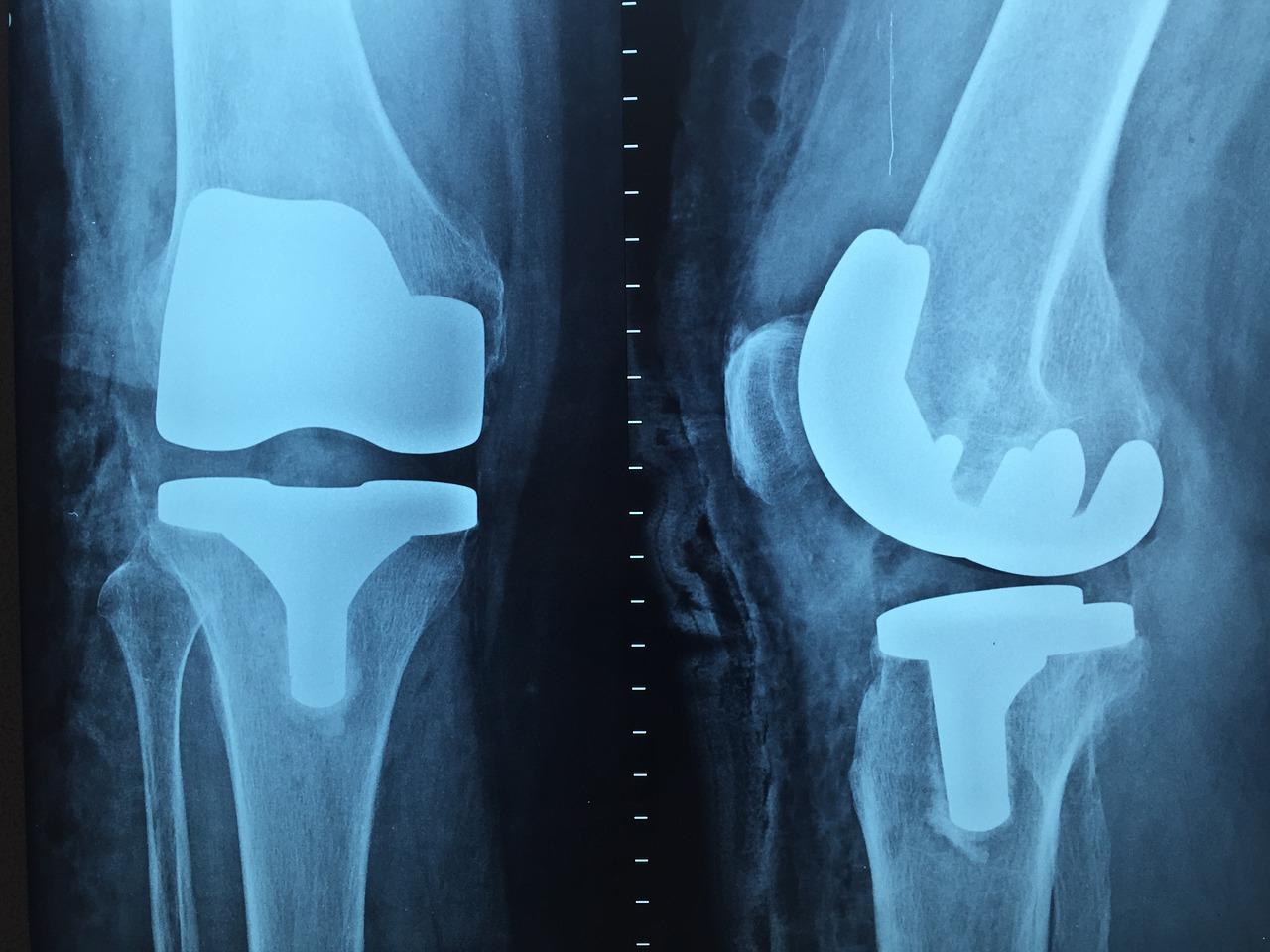 tratarea cu laser a artrozei piciorului recenzii pentru tratamentul mâinilor cu artroză