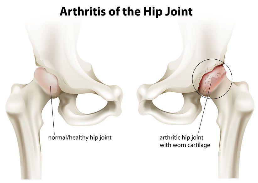 cum se tratează osteochondroza în articulația șoldului durere sub tratamentul articulației genunchiului