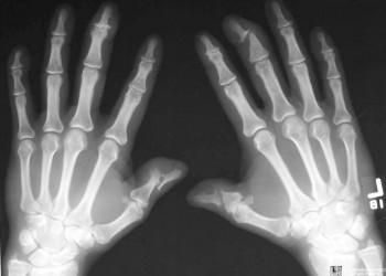 retete musculare si dureri articulare