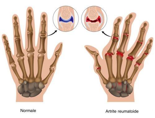 cura de artrita acuta artrita reumatoida articulara