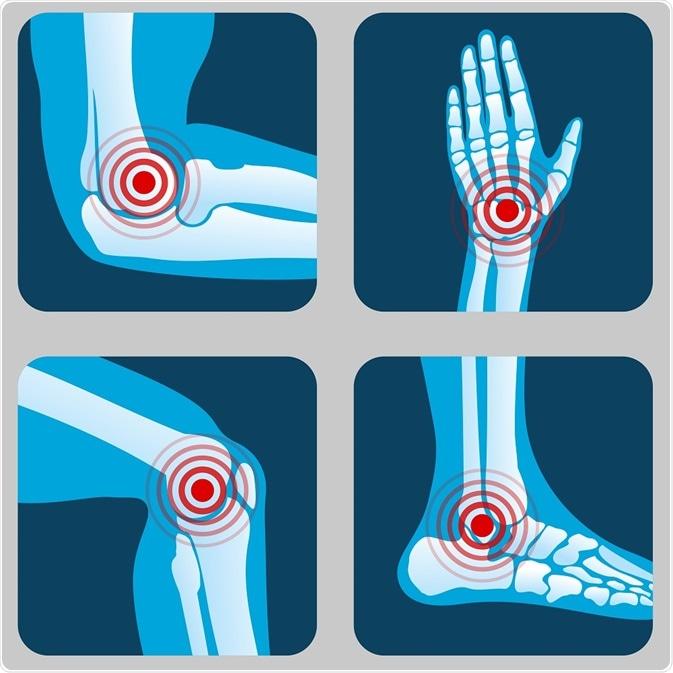 bursita recuperării articulației genunchiului