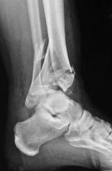 recuperarea deplasărilor după fractura gleznei