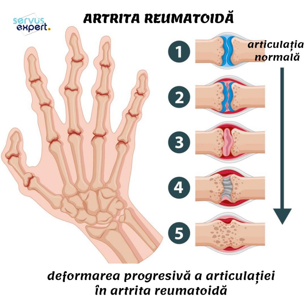 deformarea articulațiilor mâinii cu artrita reumatoidă