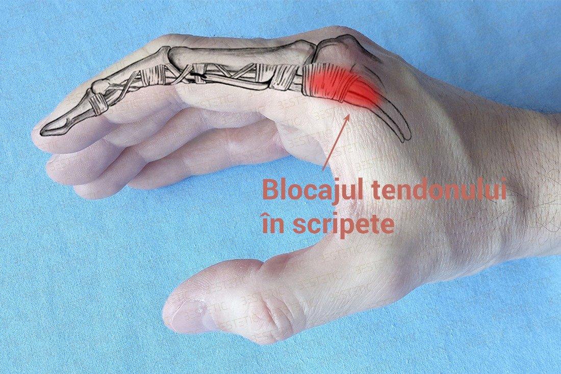 dureri la degetul mare de la mina tratament de pseudartroză naviculară