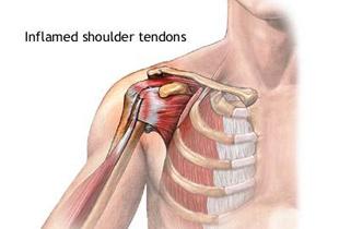 articulația șoldului doare și se prinde articulații tratate cu alcool de camfor