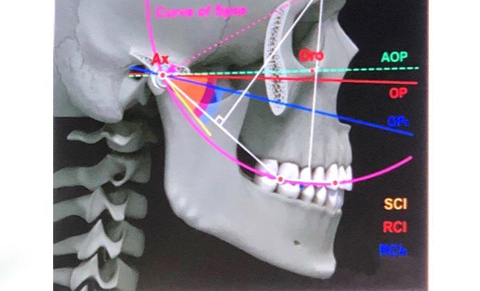 sinovita suprapatelară a tratamentului articulației genunchiului