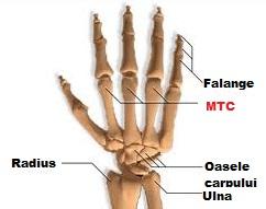 etiologia artritei gleznei articulațiile doare la îndoirea genunchiului