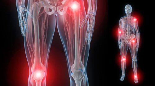 Reumatologia si bolile reumatice