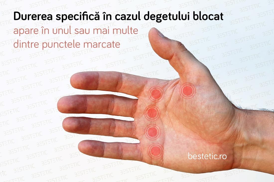 durerile articulare alergând tratament pentru durerea articulației șoldului