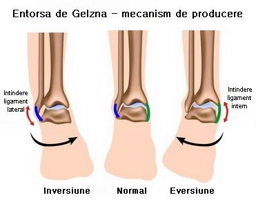 inflamația articulației șoldului piciorului drept - care