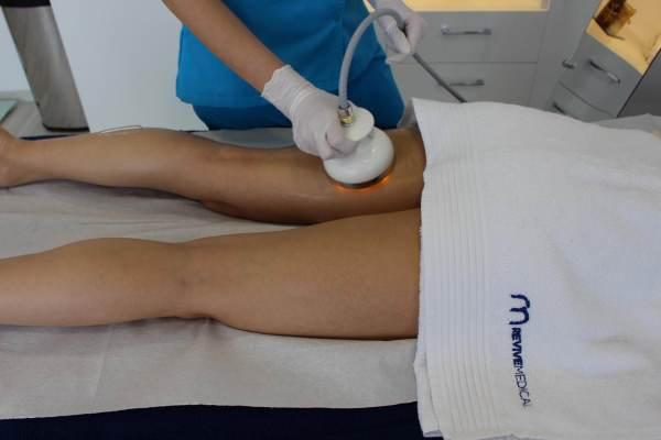 tratamentul laxității genunchiului