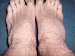 dureri articulare ramuri de pin