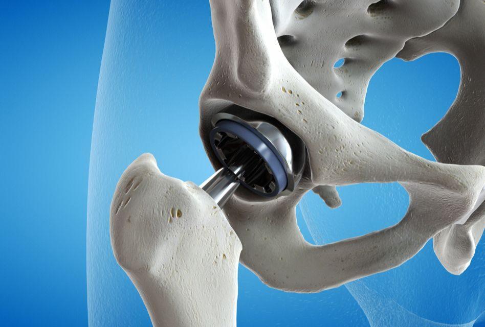 Dr. mama pentru dureri articulare tratamentul articulației șoldului dreapta de șold 2