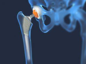 Este posibil să aburi cu artroza articulației șoldului punct dureri pe articulația cotului