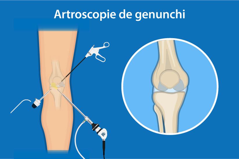 cum să tratezi conduce genunchiul