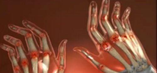 dureri articulare în palma mâinii articulația gleznei provoacă durere