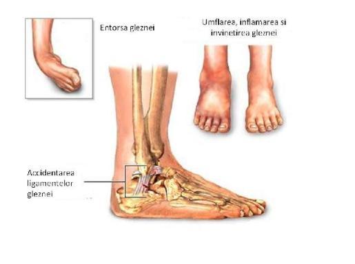 gel pentru ruperea ligamentelor gleznei semnele și tratamentul artrozei șoldului