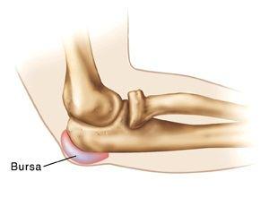 după dureri articulare cu antibiotice durere în articulația genunchiului drept și edem