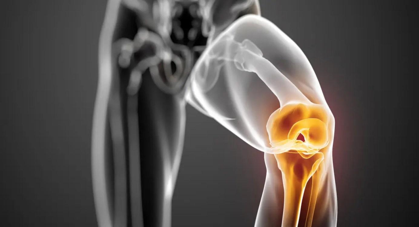 inflamația capsulei articulare și a ligamentelor înconjurătoare