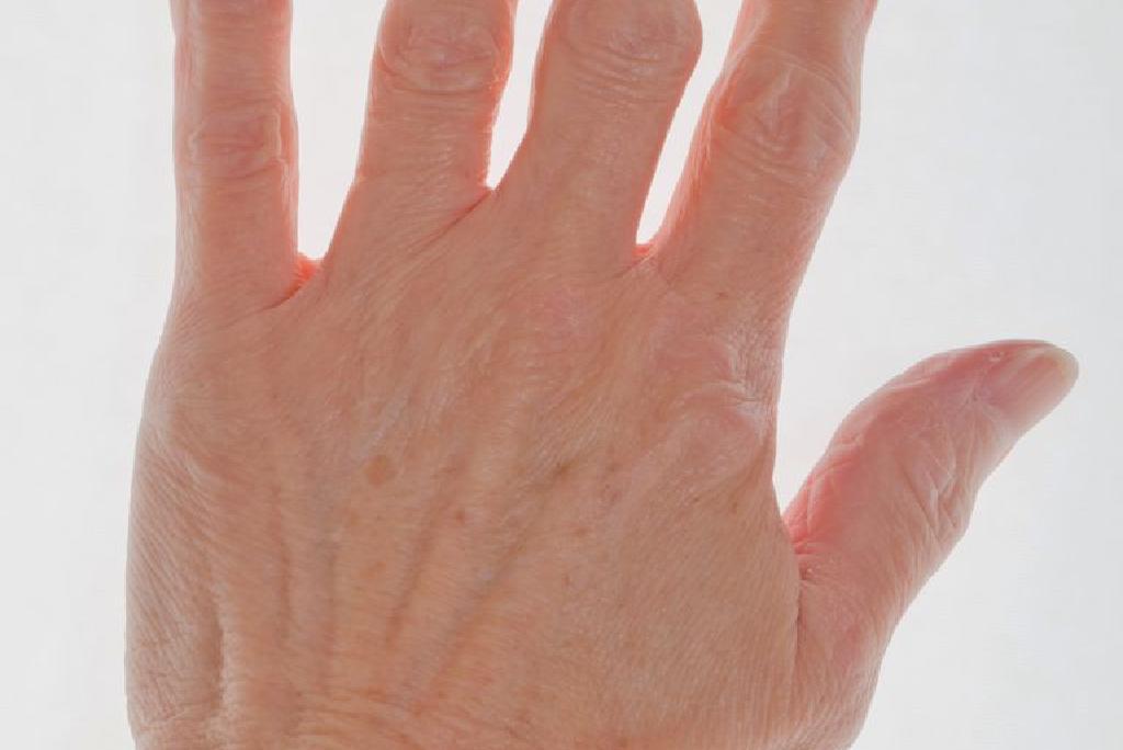 inflamația țesuturilor din jurul articulațiilor inflamația periostului gleznei