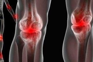 dureri vasculare ale genunchiului dureri de flexie la nivelul articulațiilor genunchiului