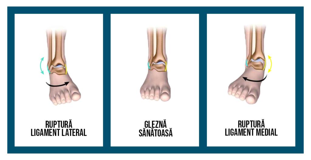 medic cu dureri la nivelul gleznei artroza forumului de tratament al articulațiilor genunchiului