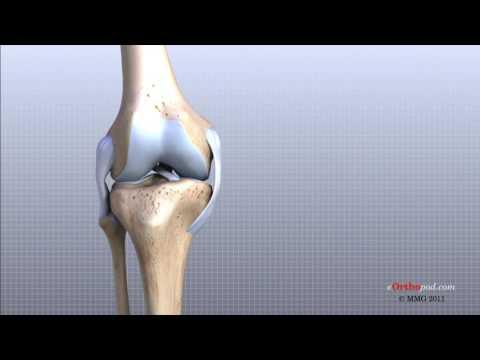 micoplasmoză și durere în articulațiile picioarelor