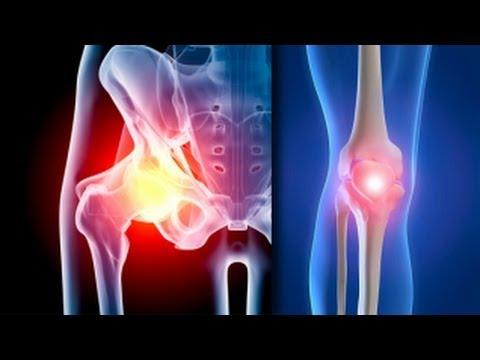 cu artroza genunchiului, durerea este constantă sau cum să elimini rapid durerea în articulațiile șoldului