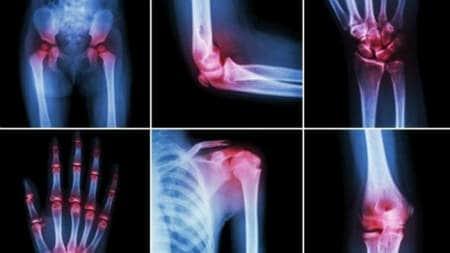 posibile boli articulare durerea de genunchi radiază până la articulația șoldului
