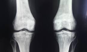 tratamentul articulației umărului dureri severe la nivelul umărului