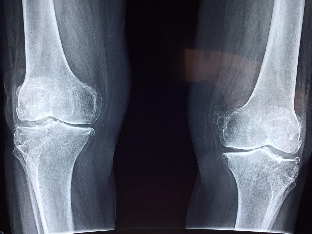 Osteoartrita și degradarea cartilajului articular | Clubul Sanatatii Stada