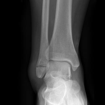 tipuri de leziuni la gleznă dureri articulare atunci când luați prednisolon