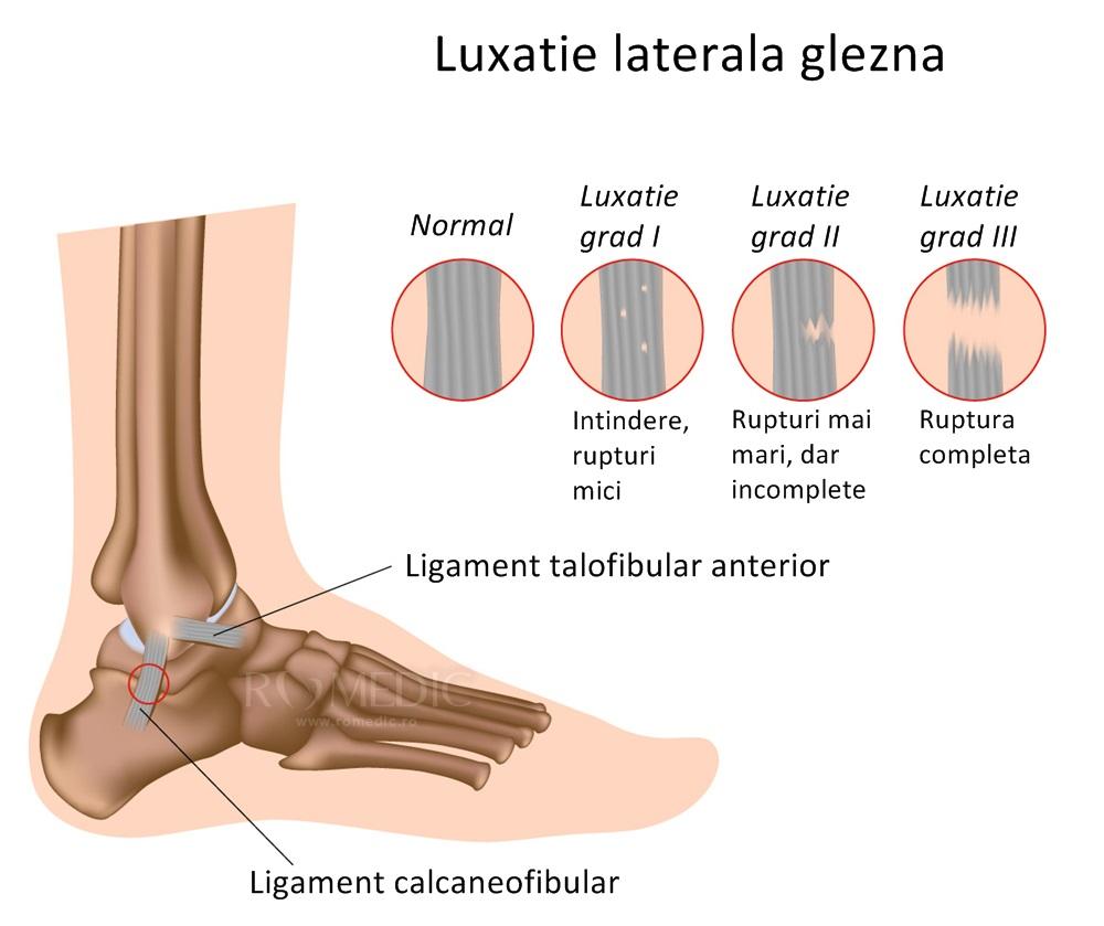 tipuri de leziuni la gleznă articulațiile piciorului capsulei
