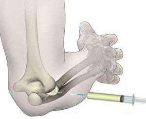 durere după lovirea articulației umărului un remediu eficient pentru durerile articulare