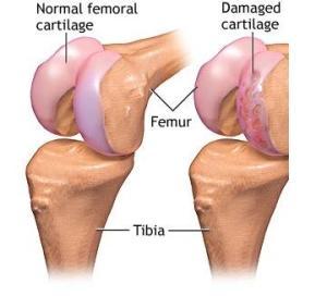 Artrita genunchiului de 2 grade